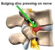 What Should You Do About Bulging, Painful Slipped Discs?
